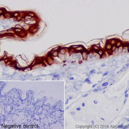 Immunohistochemistry (Formalin/PFA-fixed paraffin-embedded sections) - Anti-Cytokeratin 1 antibody [EPR17870] - BSA and Azide free (ab250845)