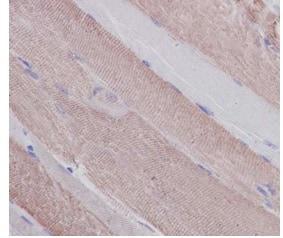 Immunohistochemistry (Formalin/PFA-fixed paraffin-embedded sections) - Anti-Slow Skeletal Myosin Heavy chain antibody [EPR10891(2)] - BSA and Azide free (ab250868)