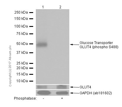 Western blot - Anti-Glucose Transporter GLUT4 (phospho S488) antibody [EPR930(2)] - BSA and Azide free (ab250949)