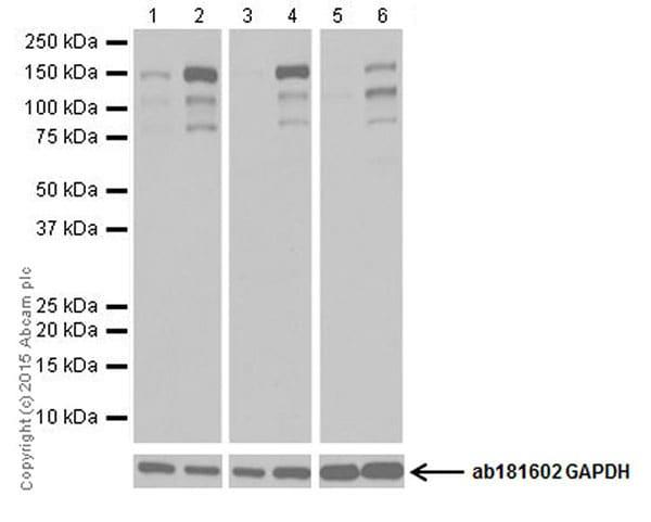 Western blot - Anti-KDM3A / JHDM2A antibody [EPR18875] - BSA and Azide free (ab251059)