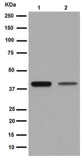 Western blot - Anti-MAGEA9 antibody [EPR16258] - BSA and Azide free (ab251089)