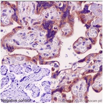 Immunohistochemistry (Formalin/PFA-fixed paraffin-embedded sections) - Anti-IPP antibody [EPR15575] - BSA and Azide free (ab251133)