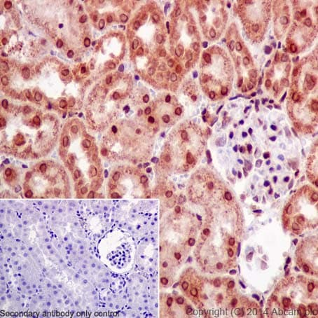 Immunohistochemistry (Formalin/PFA-fixed paraffin-embedded sections) - Anti-SNRPD2 antibody [EPR16762] - BSA and Azide free (ab251254)