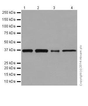 Western blot - Anti-Serine racemase antibody [EPR16682] - BSA and Azide free (ab251323)