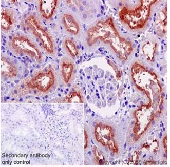 Immunohistochemistry (Formalin/PFA-fixed paraffin-embedded sections) - Anti-ATP6V0D1/P39 antibody [EPR18320-38] - BSA and Azide free (ab251387)
