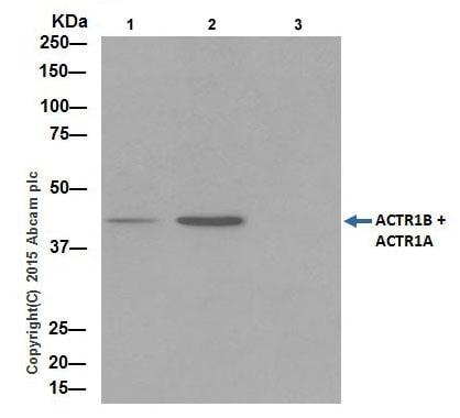 Immunoprecipitation - Anti-ACTR1B + ACTR1A antibody [EPR16968(B)] - BSA and Azide free (ab251404)