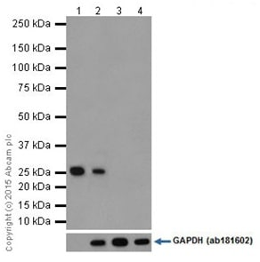 Western blot - Anti-Factor D/CFD antibody [EPR14699] - BSA and Azide free (ab251417)
