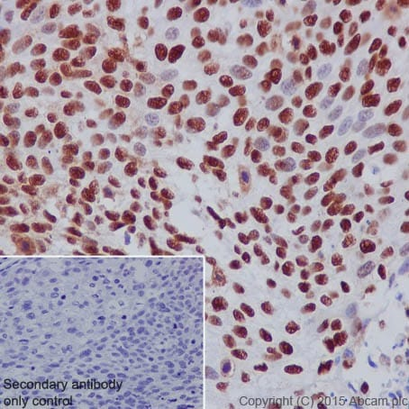 Immunohistochemistry (Formalin/PFA-fixed paraffin-embedded sections) - Anti-DBC-1 antibody [EPR18317] - BSA and Azide free (ab251430)