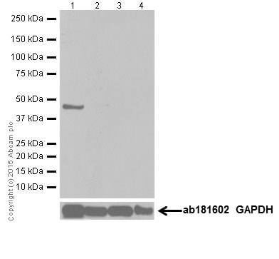 Western blot - Anti-MAPK 12 antibody [EPR6528(N)] - BSA and Azide free (ab251440)