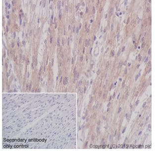 Immunohistochemistry (Formalin/PFA-fixed paraffin-embedded sections) - Anti-STK33 antibody [EPR15343] - BSA and Azide free (ab251446)