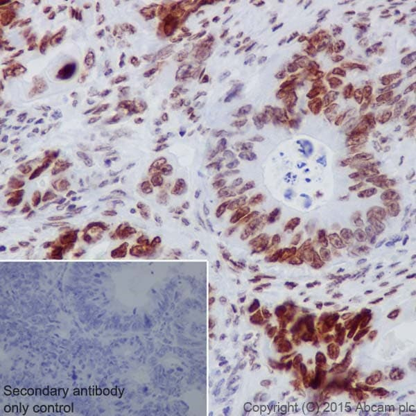 Immunohistochemistry (Formalin/PFA-fixed paraffin-embedded sections) - Anti-HMGA2 antibody [EPR18114] - BSA and Azide free (ab251468)