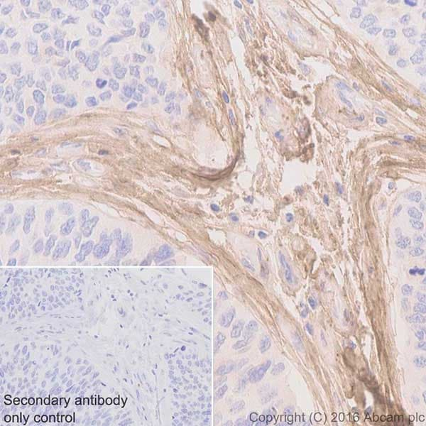 Immunohistochemistry (Formalin/PFA-fixed paraffin-embedded sections) - Anti-Biglycan antibody [EPR20235] - BSA and Azide free (ab251501)