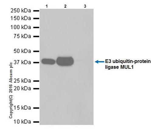 Immunoprecipitation - Anti-E3 ubiquitin-protein ligase MUL1 antibody [EPR20241] - BSA and Azide free (ab251503)