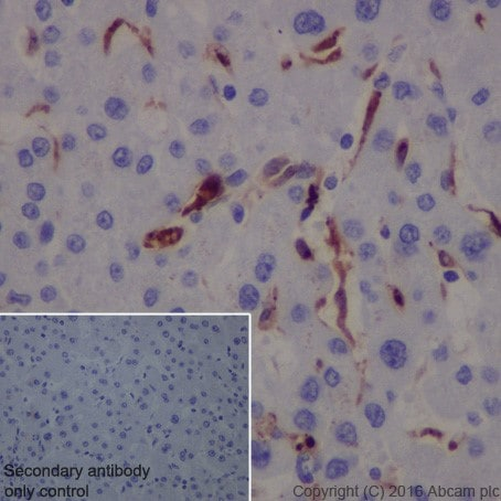 Immunohistochemistry (Formalin/PFA-fixed paraffin-embedded sections) - Anti-Galectin 3 antibody [EPR19244] - BSA and Azide free (ab251504)