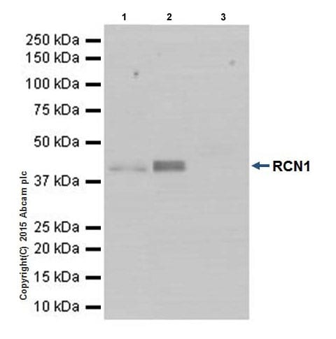 Immunoprecipitation - Anti-RCN1/RCN antibody [EPR17163-117] - BSA and Azide free (ab251515)