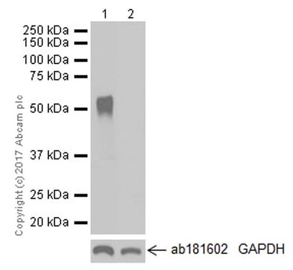 Western blot - Anti-ZCCHC4 antibody [EPR20492] - BSA and Azide free (ab251525)