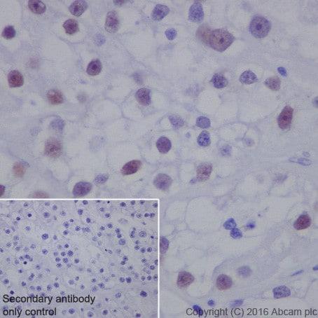 Immunohistochemistry (Formalin/PFA-fixed paraffin-embedded sections) - Anti-HNF-1B antibody [EPR18644-37] - BSA and Azide free (ab251538)