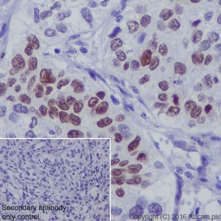 Immunohistochemistry (Formalin/PFA-fixed paraffin-embedded sections) - Anti-p73 antibody [EPR19884] - BSA and Azide free (ab251550)