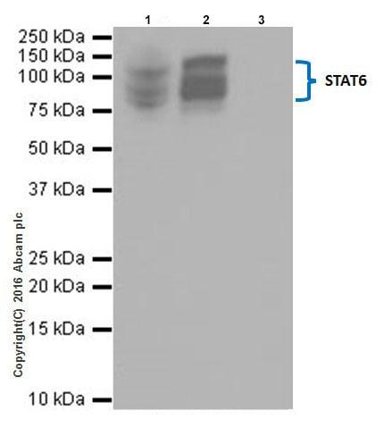 Immunoprecipitation - Anti-STAT6 antibody [EPR18278-222] - BSA and Azide free (ab251555)