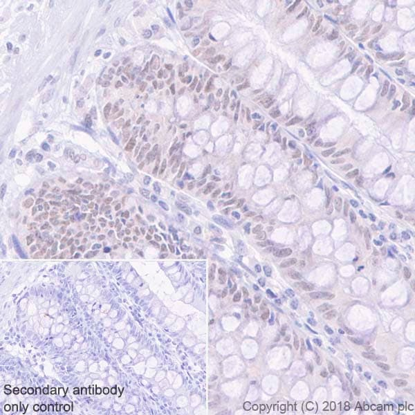 Immunohistochemistry (Formalin/PFA-fixed paraffin-embedded sections) - Anti-MLH1 antibody [EPR20522] - BSA and Azide free (ab251576)