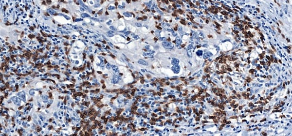 Immunohistochemistry (Formalin/PFA-fixed paraffin-embedded sections) - Anti-CD3 epsilon antibody [CAL54] - BSA and Azide free (ab251594)