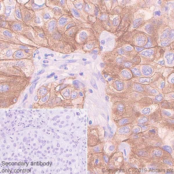 Immunohistochemistry (Formalin/PFA-fixed paraffin-embedded sections) - Anti-Met (c-Met) antibody [CAL12] - BSA and Azide free (ab251598)