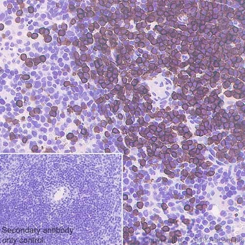 Immunohistochemistry (Formalin/PFA-fixed paraffin-embedded sections) - Anti-CD3 epsilon antibody [CAL57] - BSA and Azide free (ab251607)