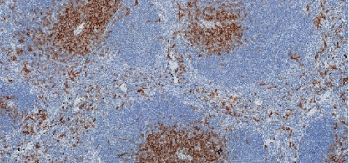 Immunohistochemistry (Formalin/PFA-fixed paraffin-embedded sections) - Anti-CD8 alpha antibody [CAL38] - BSA and Azide free (ab251609)