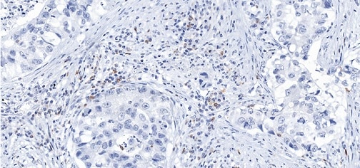 Immunohistochemistry (Formalin/PFA-fixed paraffin-embedded sections) - Anti-PD1 antibody [CAL20] - BSA and Azide free (ab251613)