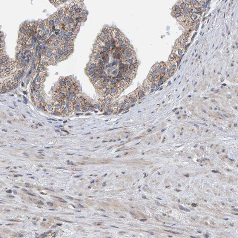 Immunohistochemistry paraffin embedded sections - Anti-MRPL45 antibody (ab251748)