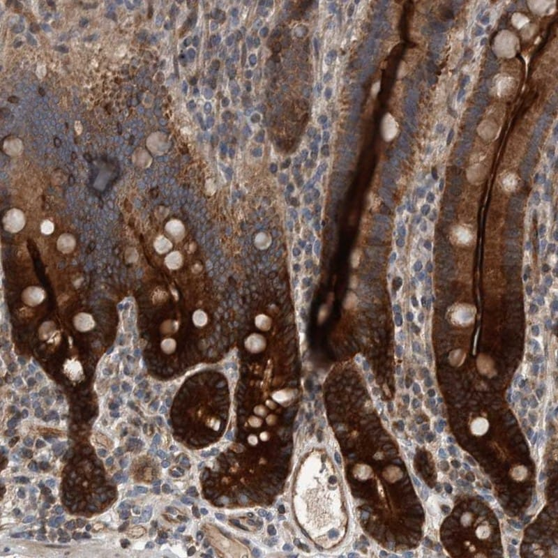 Immunohistochemistry (Formalin/PFA-fixed paraffin-embedded sections) - Anti-BAIAP2L1/IRTKS antibody (ab251753)