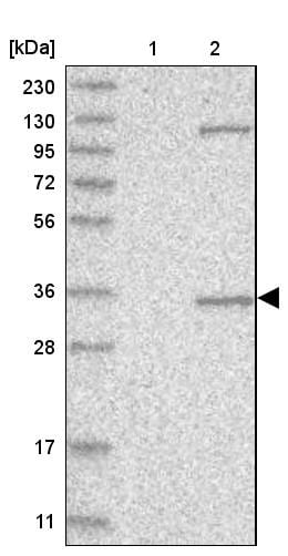 Western blot - Anti-AIDA antibody (ab251782)