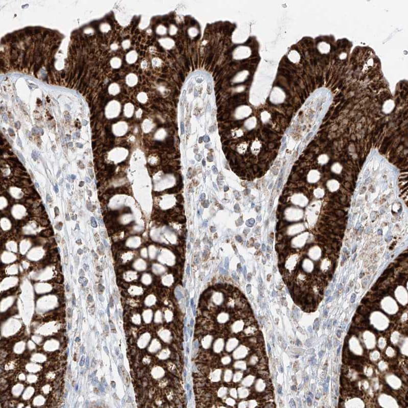 Immunohistochemistry (Formalin/PFA-fixed paraffin-embedded sections) - Anti-ETHE1 antibody (ab251791)