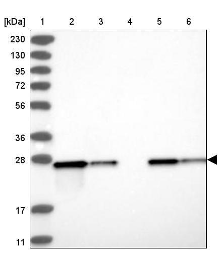 Western blot - Anti-ETHE1 antibody (ab251791)