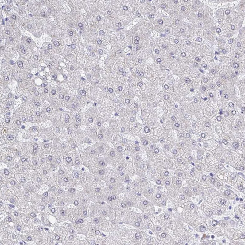 Immunohistochemistry (Formalin/PFA-fixed paraffin-embedded sections) - Anti-TRIP12/ULF antibody (ab251847)