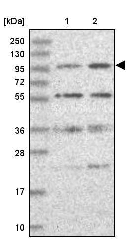 Western blot - Anti-KIF18A antibody (ab251863)
