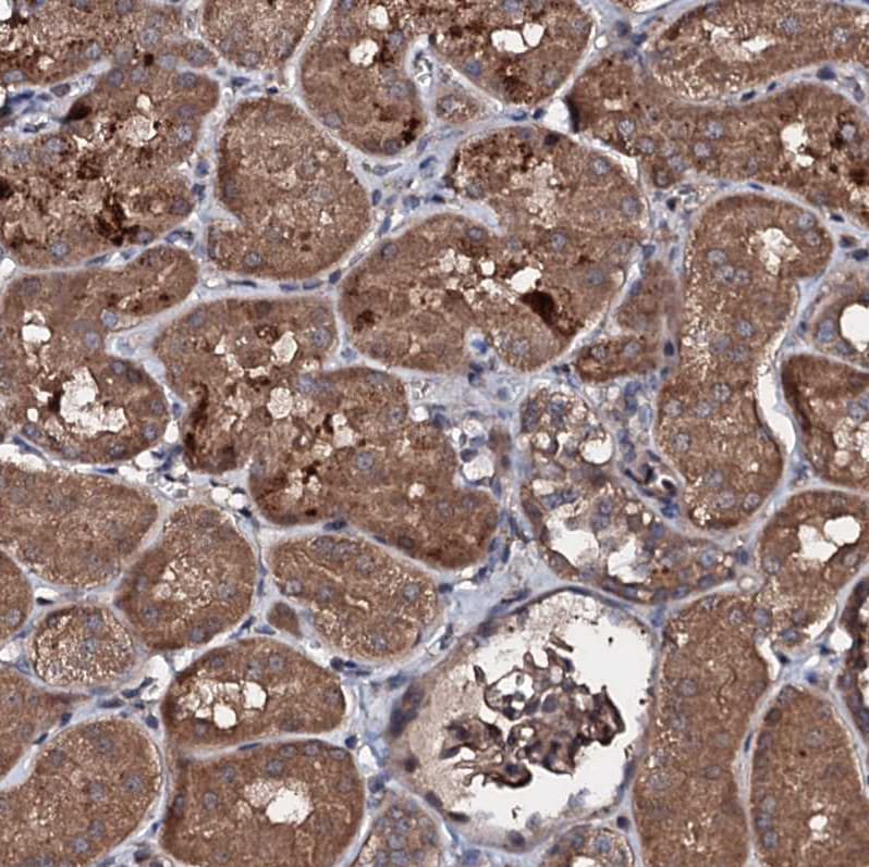 Immunohistochemistry (Formalin/PFA-fixed paraffin-embedded sections) - Anti-KIF18A antibody (ab251863)