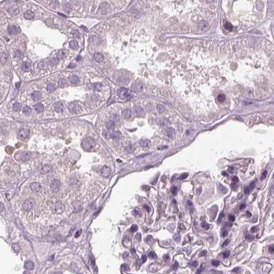 Immunohistochemistry (Formalin/PFA-fixed paraffin-embedded sections) - Anti-Filensin antibody (ab251884)