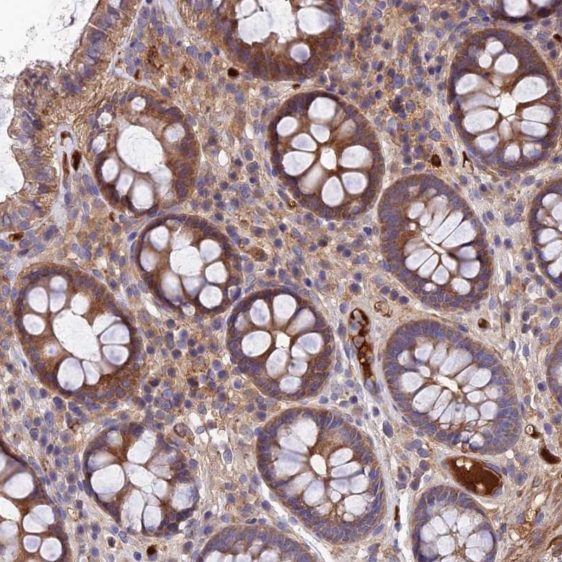 Immunohistochemistry (Formalin/PFA-fixed paraffin-embedded sections) - Anti-PYM antibody (ab251913)