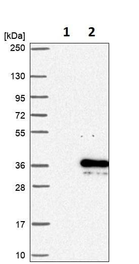 Western blot - Anti-PYM antibody (ab251913)