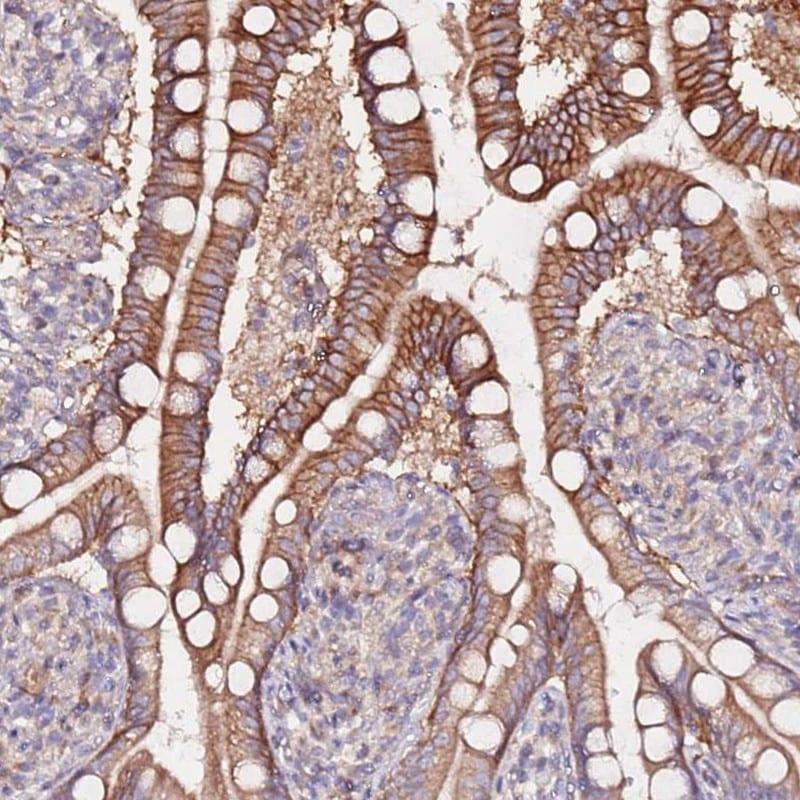 Immunohistochemistry (Formalin/PFA-fixed paraffin-embedded sections) - Anti-FLVCR1 antibody (ab251916)