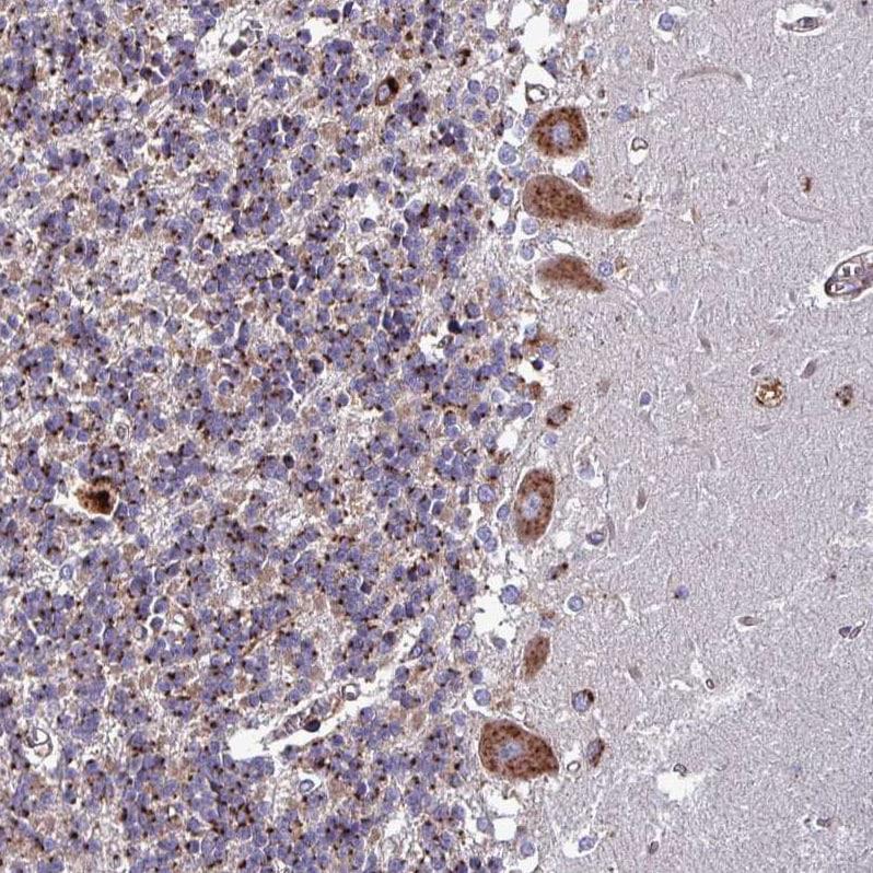 Immunohistochemistry (Formalin/PFA-fixed paraffin-embedded sections) - Anti-VAMP4 antibody (ab251938)
