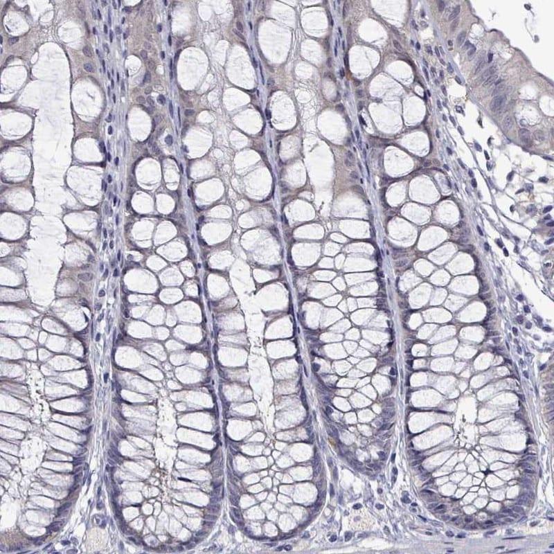 Immunohistochemistry (Formalin/PFA-fixed paraffin-embedded sections) - Anti-PADI1 / PAD1 antibody (ab251967)