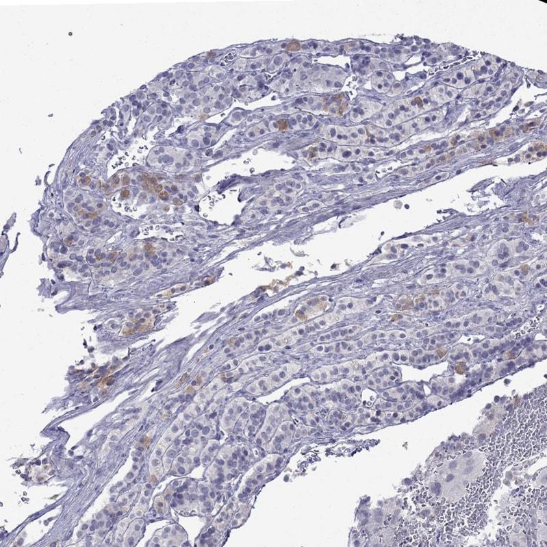 Immunohistochemistry (Formalin/PFA-fixed paraffin-embedded sections) - Anti-MYO15A antibody (ab251989)