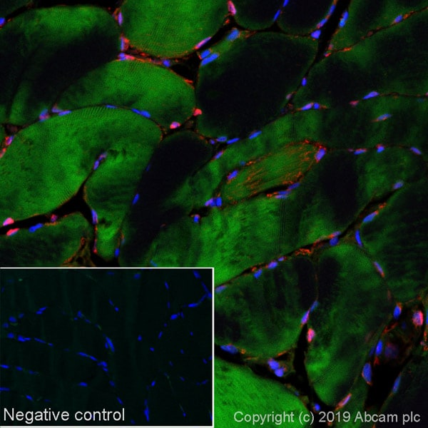 Immunohistochemistry (Formalin/PFA-fixed paraffin-embedded sections) - Alexa Fluor® 488 Anti-NDRG2 antibody [EPR11910] (ab252066)
