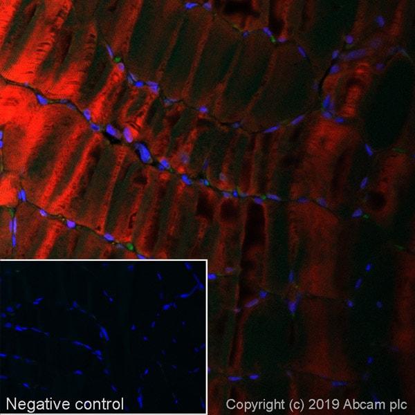 Immunohistochemistry (Formalin/PFA-fixed paraffin-embedded sections) - Alexa Fluor® 647 Anti-NDRG2 antibody [EPR11910] (ab252067)