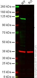 Western blot - Anti-PMS2 antibody [EPR3947]