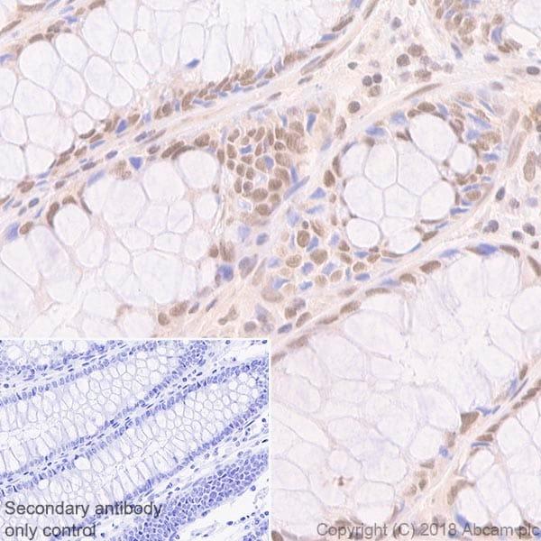 Immunohistochemistry (Formalin/PFA-fixed paraffin-embedded sections) - Anti-MLH1 antibody [EPR3894]