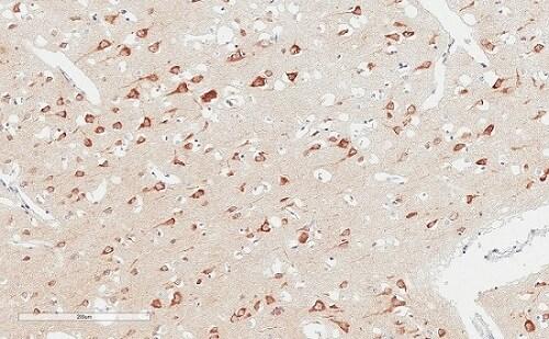 Immunohistochemistry (Formalin/PFA-fixed paraffin-embedded sections) - Anti-LAG-3 antibody [EPR4392(2)]