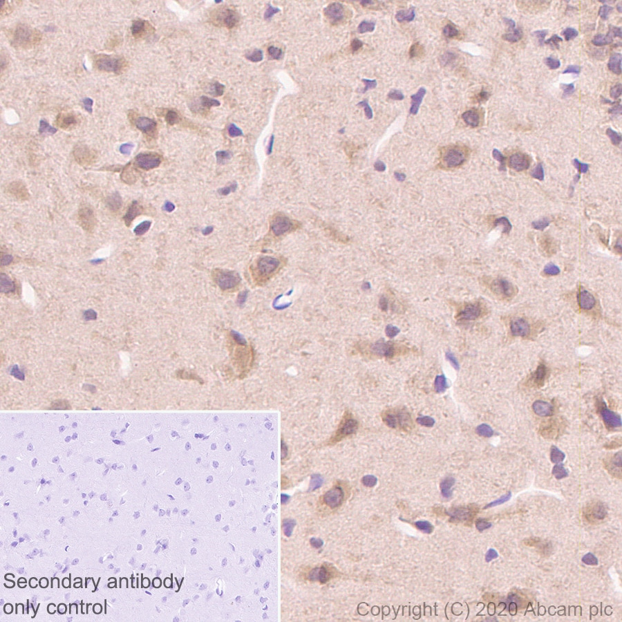 Immunohistochemistry (Formalin/PFA-fixed paraffin-embedded sections) - Anti-Hsp70 antibody [3A3] - BSA and Azide free (ab252240)
